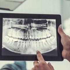 tandlæger © Georgerudy Dreamstime